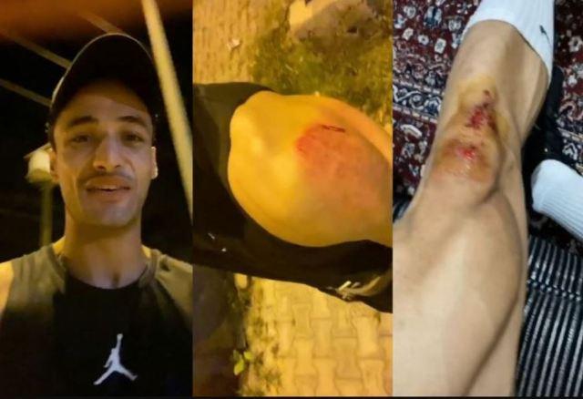 आसिम रियाज पर बाइक सवार ने किया हमला, बुरी तरह हुए घायल
